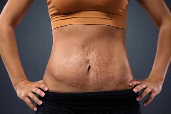 tummy with stretchmarks